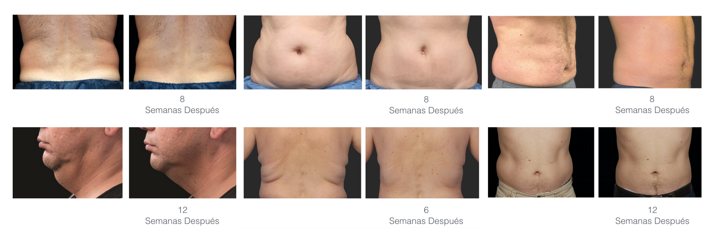 CoolSculpting / Criolipolisis