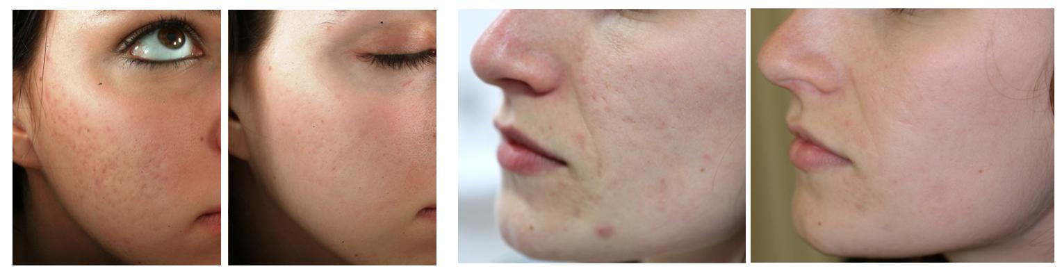 cicatrices acné radiofrecuencia