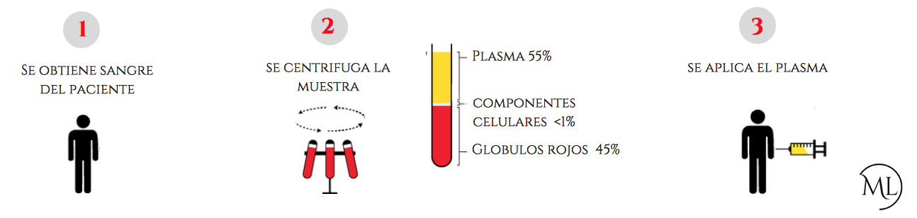 plasma rico en plaquetas buenos aires