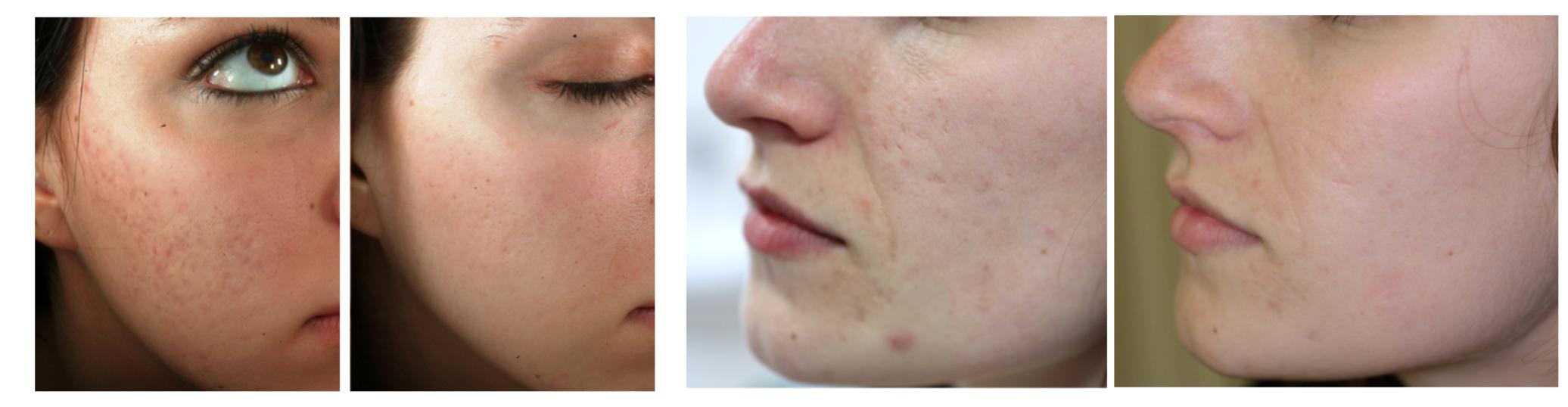 antes y despues cicatrices de acne