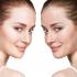 tratamiento cicatrices de acne